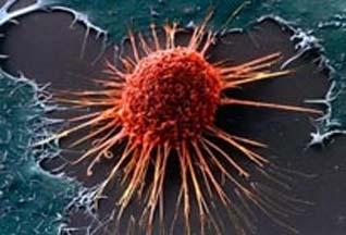 Обнаружена противоопухолевая активность циклопирокса и деферипрона в отношении рака шейки матки