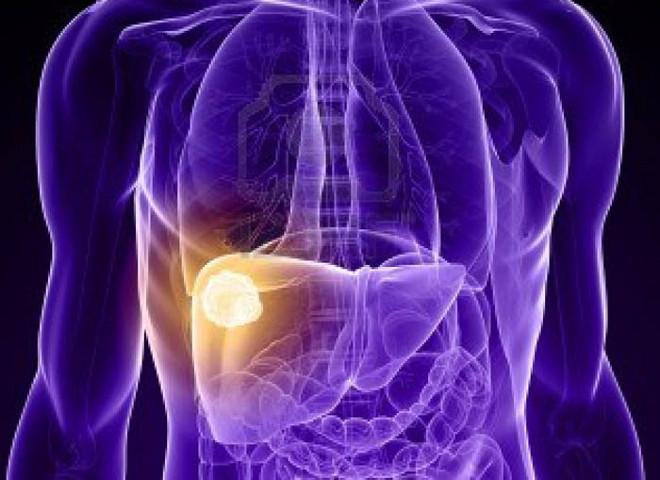 Рак печени и диабет у мужчин могут вызвать генетические отклонения