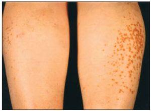 Гиперлипидемия способствует повышению агрессивности многих видов злокачественных опухолей молочной железы
