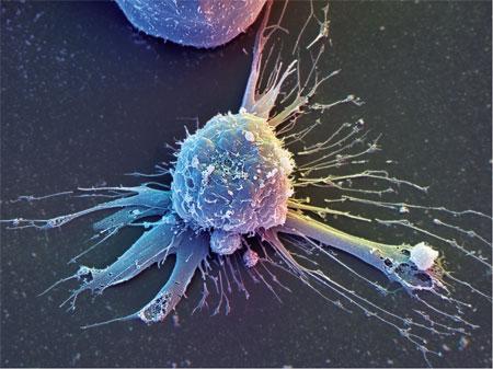 Стволовые клетки раковых опухолей имеют слабое место