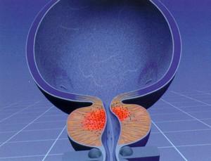 Сочетанная анестезия при радикальной простатэктомии по поводу рака предстательной железы связана со снижением риска рецидива опухоли