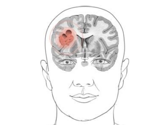 Развитие структурных изменений в тканях головного мозга в результате побочных эффектов химиотерапии рака доказано с помощью метода нейровизуализации