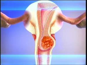 Рак шейки матки: симптомы и методы лечения
