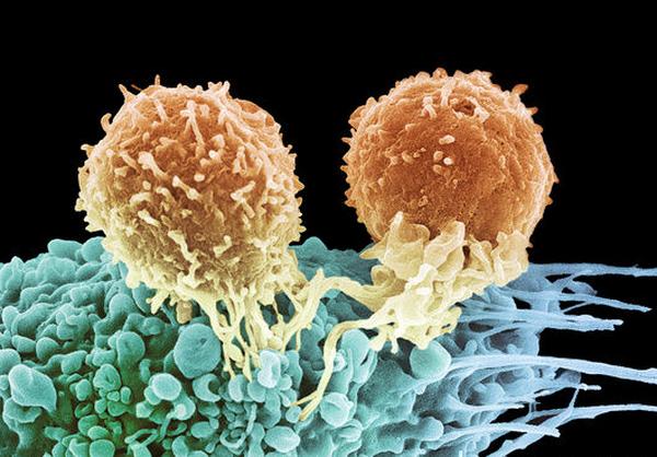 Раковый белок важен для безопасного деления клеток опухоли