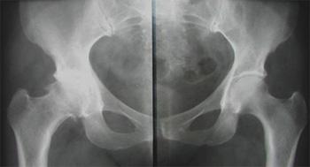 Онкология тазобедренных суставов контрактура коленных суставов