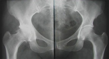 Коксартроз тазобедренного сустава и  остеохондроз поясничного отдела