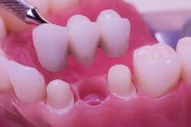 Основные недостатки и преимущества в протезировании зубов