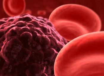 Повышенный уровень холестерина: риск развития рака груди