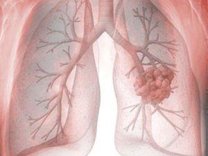 Мезотелиома — опухоль эпителия: виды, прогнозы, лечение