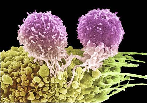 Исследователи напечатали «гравюру» из раковых клеток