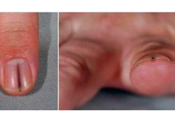 Внимание на ногти! «Заноза» в лунке оказалась редкой опухолью