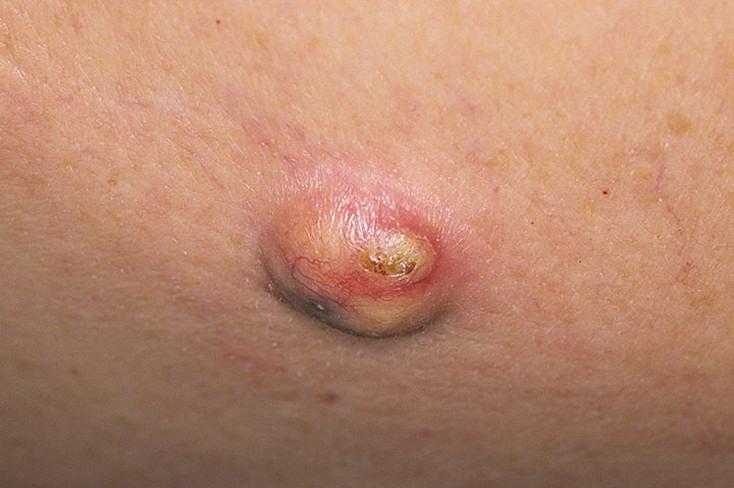 Киста — опасное заболевание
