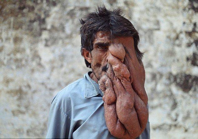 Медицина бессильна: индийский «человек-слон» опустил руки
