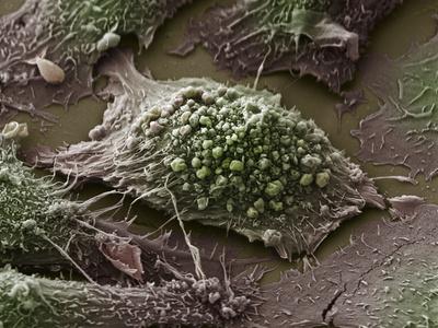 Обнаружена высокая терапевтическая эффективность эрлотиниба в отношении местнораспространенного рака шейки матки