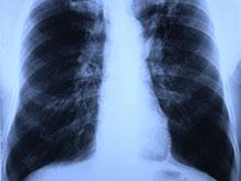 Генетические мутации — скрытое оружие особо агрессивного рака легких