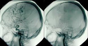 Клиническая смерть и видения