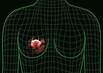 Эстроген способствует развитию рака у женщин с BRCA1