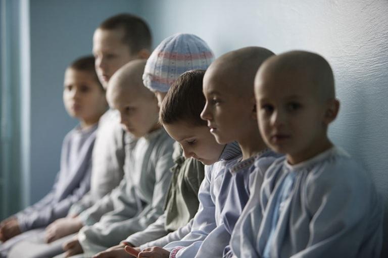 Радиотерапия детского рака связана со значительным повышением риска развития РМЖ во взрослом возрасте