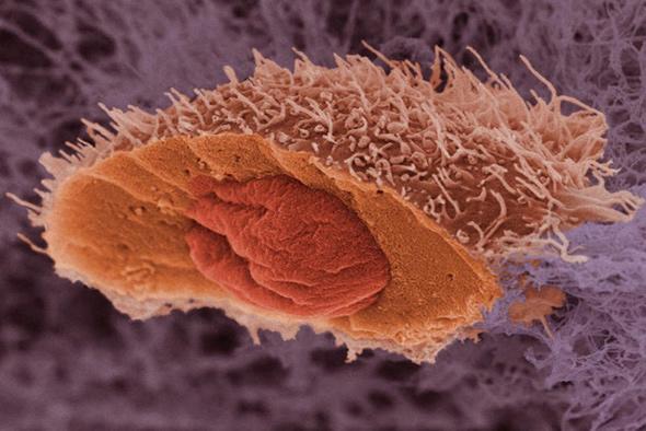 Ученые из Новосибирска создали вирусы-убийцы раковых клеток