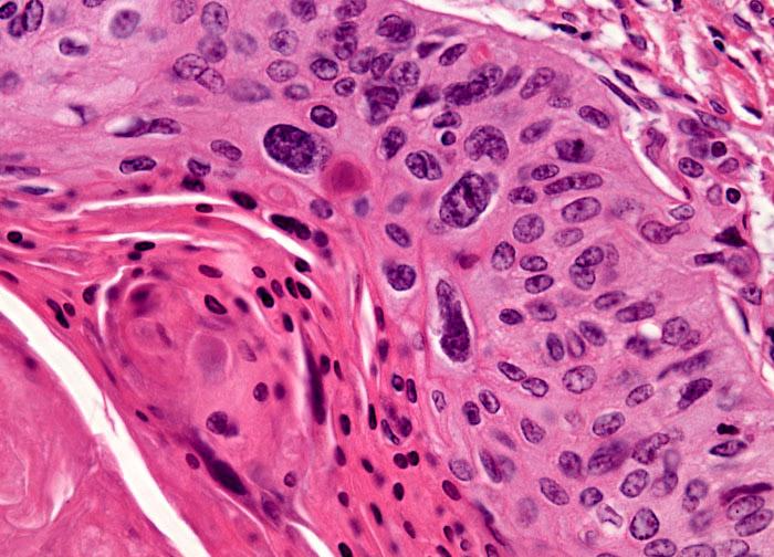 Идентифицированы 2 ЛОВ, которые могут быть использованы в качестве маркеров рака гортани