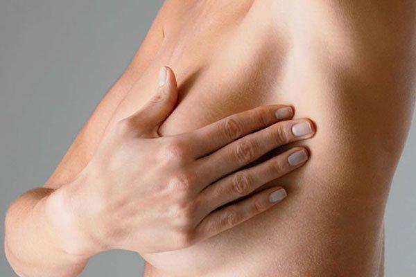 Почему рак груди это не приговор