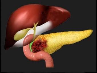 Завершен предварительный этап испытаний метода ранней диагностики рака поджелудочной железы по резидентной микрофлоре ротовой полости