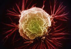 Ученые предложили новое лечение рака