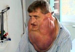 «Лишний» подбородок весом почти 6 кг: редкую опухоль успешно удалили
