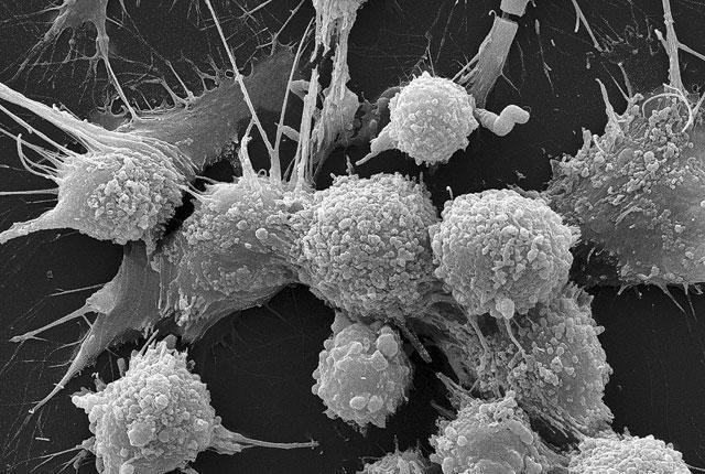 Анализ семенной жидкости поможет диагностировать рак простаты