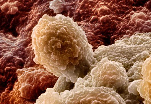 Лучевая терапия при раке предстательной железы увеличивает риск развития других опухолей