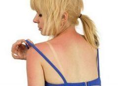 Солнечные ожоги повышают риск меланомы
