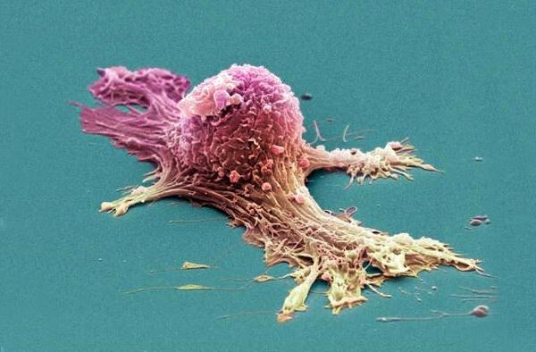 Если обнаружили рак: первые действия
