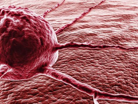 Как уменьшить риск заболеваемости раком