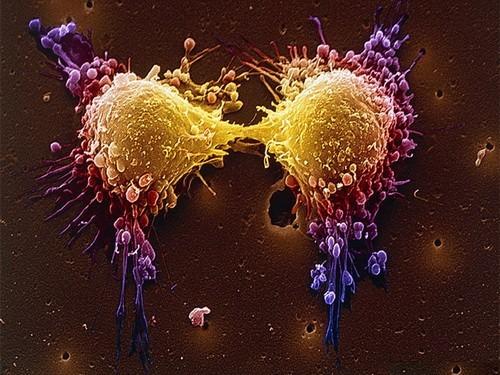 Ученые обратили вспять процесс канцерогенеза