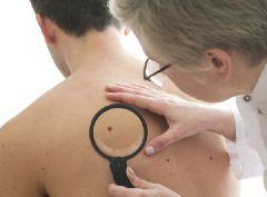 Риск рака кожи недооценивали