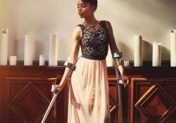 Рак костей и титановые протезы не помешали карьере модели
