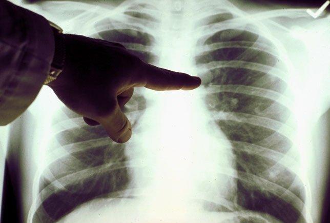 В США успешно испытана новая система контроля положения опухоли при радиотерапии рака легкого