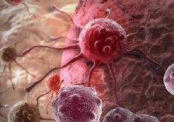 Диабет связан с повышенным риском рака головы и шеи