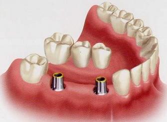 Имплантация зубов как современный метод в стоматологии