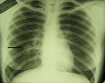 Развитие рака лёгких можно остановить