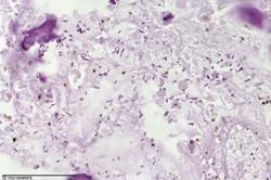 Введение бактерий убивает опухоль