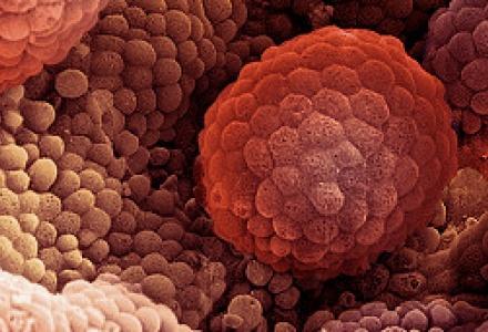 Новый метод неинвазивного скрининга рака простаты