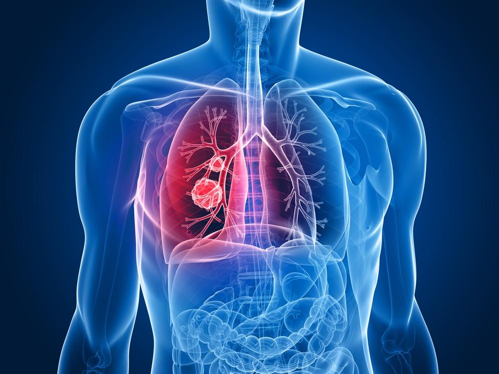 Рак легких можно заподозрить по температуре выдыхаемого воздуха