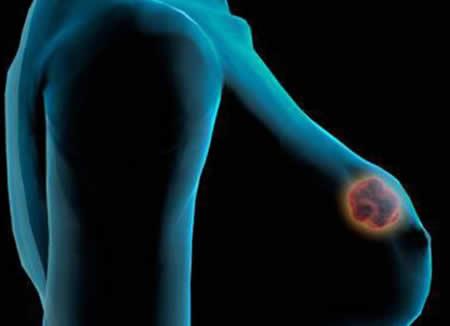Ежедневные пешие прогулки снижают риск рака груди