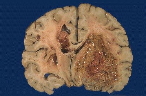 У больных раком мозга появилась новая надежда!