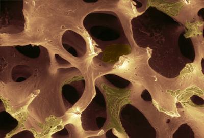 Рак костей: первые симптомы