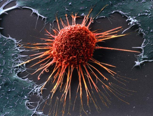 Ученые нашли молекулу, останавливающую развитие раковой опухоли