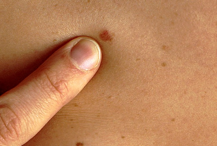 Ученые разработали устройство для диагностики рака кожи