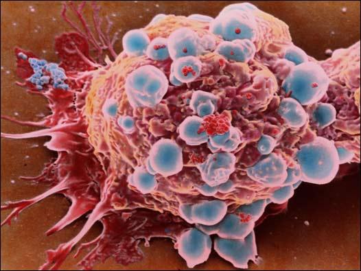 Найден протеин, контролирующий распространение рака