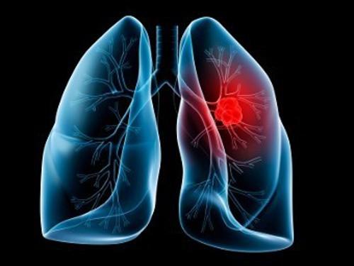 У рака легких нашли 20-летний «спящий» период